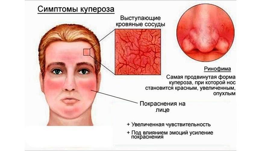 симптомы купероза