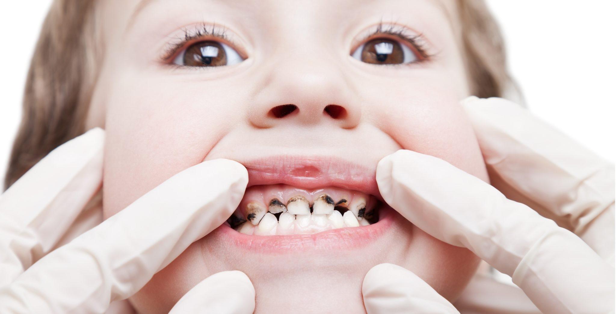 рост молочных зубов