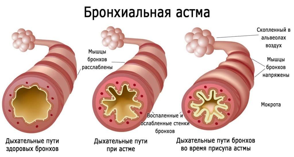 бронхиальная астма картинка