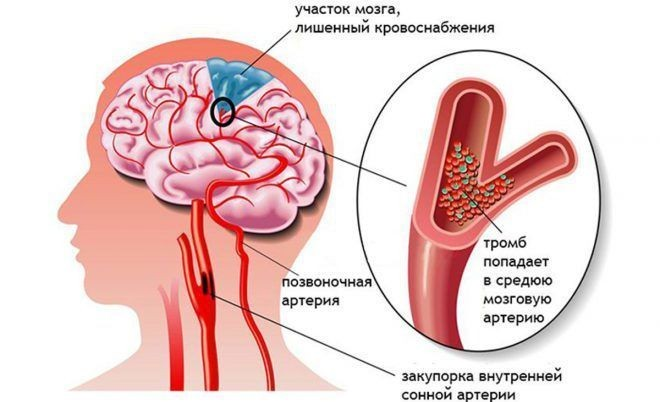 гипертония <strong><a href='../new/ochishchenie-sosudov-golovnogo-mozga'><strong><a href='https://zdravbud.net/new/ochishchenie-sosudov-golovnogo-mozga'>мозг</a></strong></a></strong>