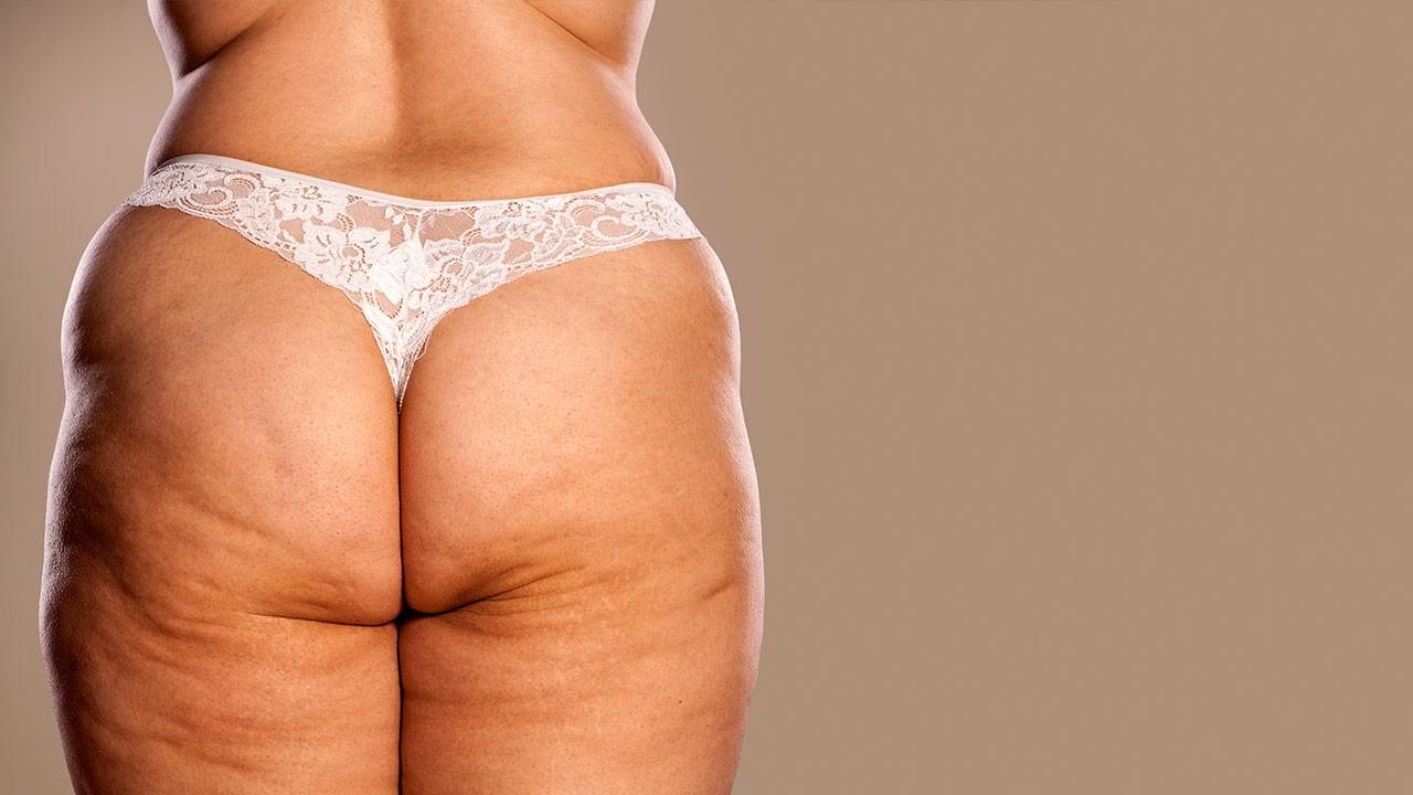 ожирение целлюлит