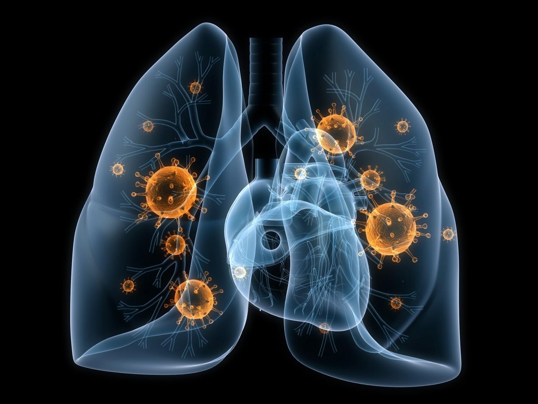 влияние коронавируса на легкие